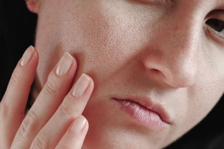 toner untuk kulit berjerawat